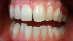Patient's smile before Quick Straight Teeth