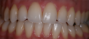 Patient's teeth after tooth whitening treatment