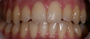 Patient's teeth before tooth whitening treatment